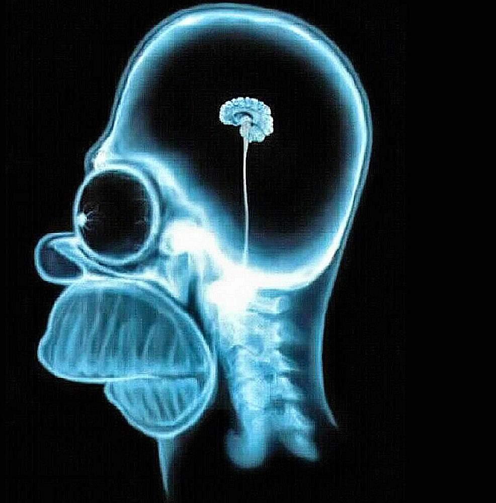 Homer Brain.