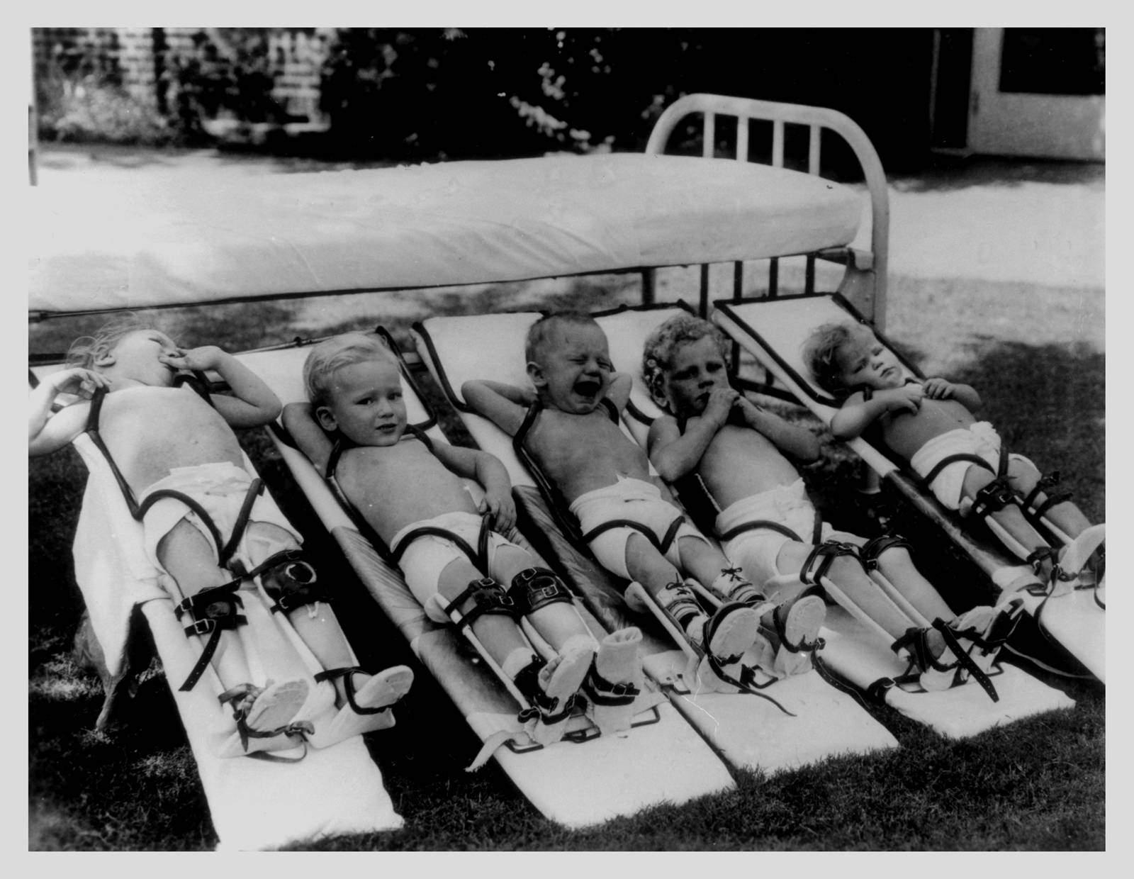 poilo-affected-children.